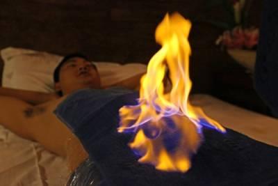 بدن کو آگ لگا کرہر بیماری ختم کرنے کا انوکھا طریقہ،مہنگی ادویات بنانے والے اس علاج کو دیکھ کر سر پیٹ کر رہ جاتے ہیں