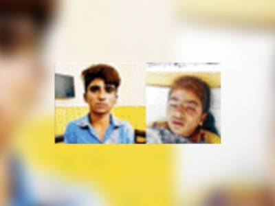 ہارون آباد: بری نظر رکھنے سے منع کرنے پر رشتہ دار لڑکی پر تیزاب پھینک دیا' چہرہ اور چھاتی جھلس گئے