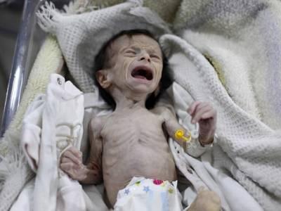 یہ کس مسلمان ملک کے بچے کی تصویر ہے اور اس کی یہ حالات کیسے ہوگئی؟ ایسا انکشاف کہ پوری دنیا ہل کر رہ گئی