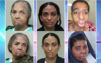 برطانوی ڈاکٹر نے 3 پاکستانی خواتین کی زندگی بدل دی، ایسا کام کردکھایا کہ ہر پاکستانی شہری داد دینے پر مجبور ہوجائے