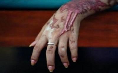 سیالکوٹ میں تیزاب گردی ، ملزم نے گھر میں گھس کر 4 لڑکیوں پر تیزاب پھینک دیا