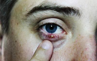 آنکھ پر اس طرح کا دانہ نکل آئے تو کبھی غلطی سے بھی اسے پھوڑیں مت، کیسے نجات حاصل کر سکتے ہیں؟ جانئے وہ بات جو آپ کو بہت بڑی مشکل سے بچا سکتی ہے