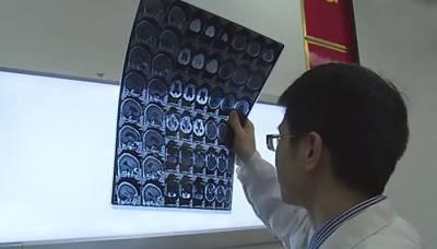 ایک چینی شخص 6 ماہ تک شدید سر درد، دورے اور متلی برداشت کرتا رہا اور جب ہسپتال پہنچا توسر کا ایم آر آئی سکین کیا گیا،دماغ میں ڈاکٹروں نے ایسی چیز دیکھ لی کہ تاریخ میں مثال ڈھونڈنا مشکل، کیا چیز تھی؟ جان کرآپ بھی سرپکڑ کر بیٹھ جائیں گے کیونکہ ۔ ۔ ۔