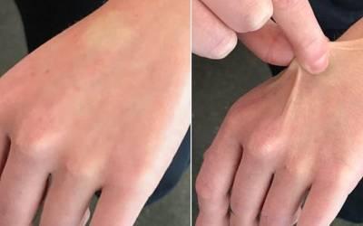 'اپنے ہاتھ پر اس طرح 3 سیکنڈ کے لئے چٹکی کاٹیں، اگر اس پر نشان رہ جائے تو اس کا مطلب ہے کہ۔۔۔' اس کا کیا مطلب ہوتا ہے؟ جان کر آپ بھی ضرور ایسا کر کے دیکھیں گے