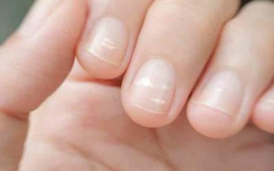 آپ کے ناخنوں پر اس طرح کے سفید نشانات کا کیا مطلب ہوتا ہے؟ جانئے وہ بات جو آپ کو کسی نے نہیں بتائی