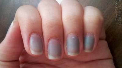 'اگر آپ کے ناخنوں کے نیچے نیلے رنگ کی لکیریں نمودار ہونے لگ جائیں تو اس کا مطلب ہے کہ آپ کے سینے میں۔۔۔' جانئے وہ بات جو آپ کو بڑے نقصان سے بچا سکتی ہے
