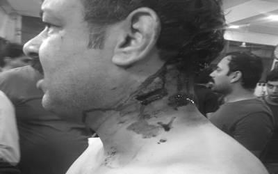 چیف جسٹس کا صحافی اسد کھرل پر تشدد کا نوٹس،آئی جی پنجاب سے رپورٹ طلب