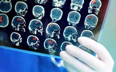 مردوں اور خواتین کے دماغوں میں دراصل کیا فرق ہوتا ہے؟ بالآخر سائنسدانوں نے ایسا انکشاف کردیا جو کسی نے سوچا بھی نہ تھا