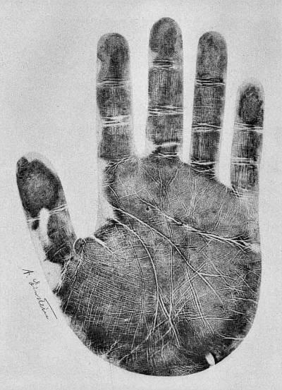 دنیا میں سائنسی انقلاب برپاکرنے والا وہ ہاتھ جس کے دماغ کی لکیر نے ڈاکٹروں کو حیران وپریشان کرکے رکھ دیا تھا،ایسی علامت جس انسان کے ہاتھ میں بھی ہوگی ،جان لیجئے کہ وہ بھی کوئی بڑا کام کرسکتا ہے