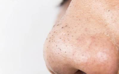 اگر آپ کے منہ کے گرد یا گالوں پر اس طرح کے نشانات پڑجائیں تو یہ آپ کی صحت کے بارے میں کیا کہتے ہیں؟ وہ بات جو آپ کو ضرور معلوم ہونی چاہیے