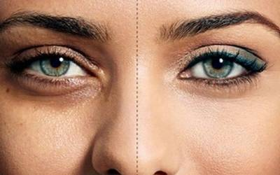 آنکھوں کے گرد بننے والے حلقوں سے نجات کے لئے آسان قدرتی نسخے