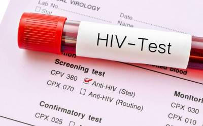 وہ 10 فیصد لوگ جن پر HIVوائرس اثر نہیں کرتا، سائنسدانوں نے انتہائی حیران کن وجہ بھی بتادی