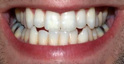 ٹوتھ پیسٹ کو بھول جائیں، دانت میں کیڑا بھی لگ جائے تو اس طریقے کو آزما کر دنوں میں دانتوں کی مکمل صحت بحال کریں
