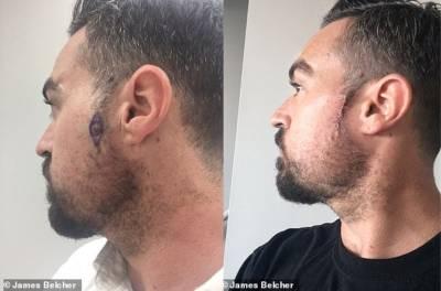 حجام نے بال کاٹتے ہوئے آدمی کے سر پر ایسی چیز دیکھ لی کہ فوری ڈاکٹر کے پاس بھیج دیا، زندگی بچالی