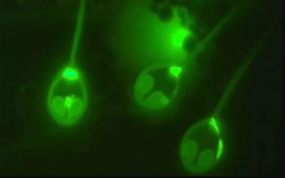 اسرائیلی سائنسدانوں نے بغیر آکسیجن کے زندہ رہنے والا جانور دریافت کرلیا