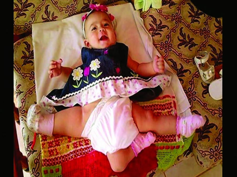 لاس اینجلس، پانامہ میں تین ٹانگوں والی بچی کی پیدائش