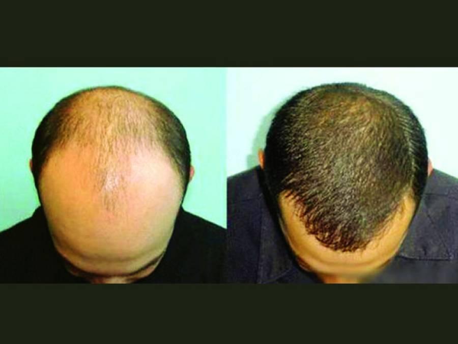 گنجوں کیلئے بڑی خوشخبری ،پیاز کے ذریعے بال پھر سے گھنے بنانے کا طریقہ