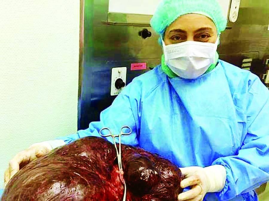 اماراتی خاتون کے پیٹ سے ساڑھے 17 کلو وزنی رسولی نکال لی گئی