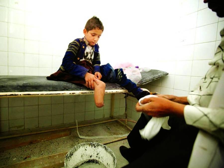 صنعا: باغیوں کی فائرنگ سے ٹانگ کھونے والا بچہ ہسپتال میں زیر علاج ہے