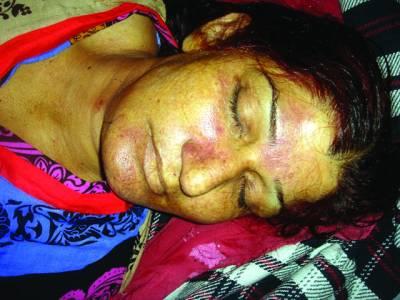 بد چلنی کا شبہ، بھائی نے فائرنگ کر کے بہن کو قتل کر دیا،ملزم فرار