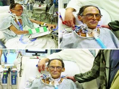 دنیا کا واحد آدمی جو دل کے بغیرپانچ ہفتے تک زندہ رہا