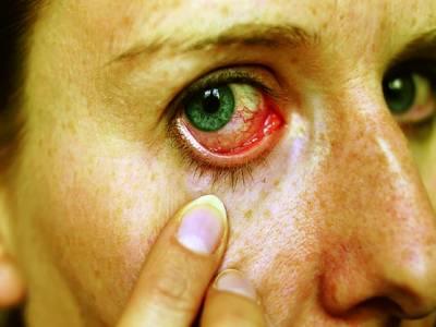 آنکھوں کو خطرناک بیماری سے بچانے کے لئے کنٹیکٹ لینز کا استعمال احتیاط سے