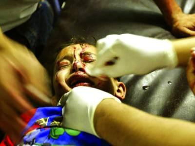 غزہ: اسرائیلی گولہ باری سے شدید زخمی بچے کو ڈاکٹر طبی امداد دے رہے ہیں