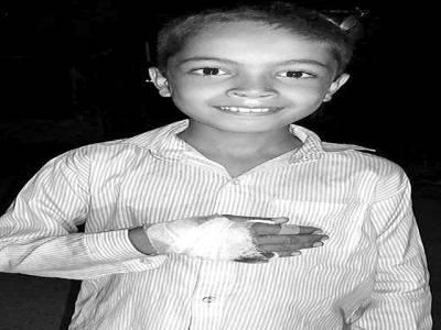 غازی آبا د میں ڈور پھرنے سے7سالہ بچے کا ہاتھ زخمی ہو گیا