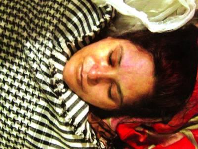 اسلام پورہ ،سسرالیوں کے ہاتھوں جھلس کر زخمی ہونیوالی فاطمہ ہسپتال میں دم توڑ گئی