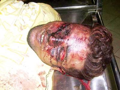 نامعلوم ملزمان کی فائرنگ سے قتل ہونے والاشہری سپردخاک
