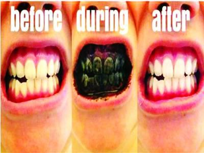 دنیا میں ہزاروں لوگ اپنے دانتوں کو تار کول سے چمکانے لگے