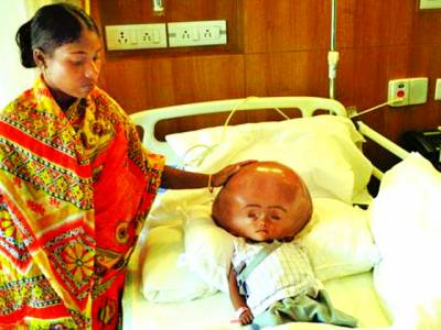 بھارت میں ایک نوزائیدہ بچے کا سر بڑھنا شروع ہو گیا