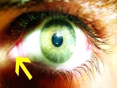 آنکھوں کے کونوں میں یہ ''گلابی نقطہ''کیوں ہوتا ہے؟